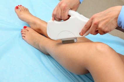 laser hair removal for dark skin